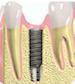 Dental Implant Services Salmon Creek Dentist - Vancouver WA Dentist