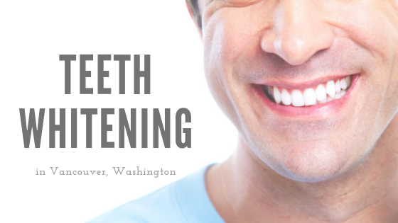 Teeth Whitening in Vancouver Washington