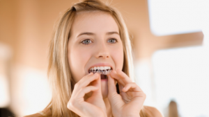 Woman using ClearCorrect aligners