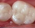 Composite Filling - Vancouver WA Dentist - Mount Vista Dental