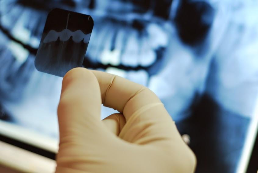 Partial Dentures Digital X-Rays Vancouver WA Dentist - Salmon Creek Dentist - Mount Vista Dental