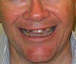 Dental Implant Services Salmon Creek Dentist - Vancouver WA Dentist - Mount Vista Dental