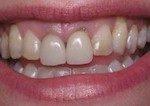 Salmon Creek Dentist - Vancouver WA Dentist - Mount Vista Dental